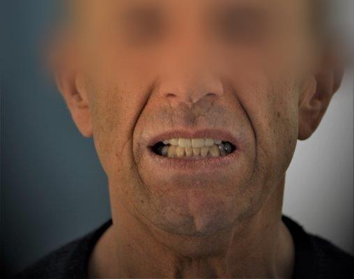 denti dopo il trattamento di rigenerazione