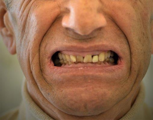 denti prima del trattamento di rigenerazione